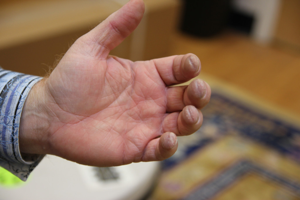 Practice much? David Grier shows off his calluses.